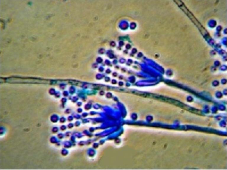 「カビ顕微鏡写真」の画像検索結果